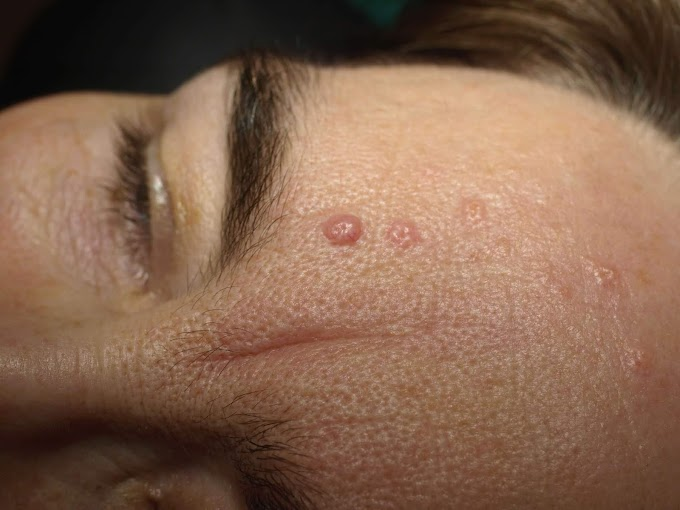 Small bump on forehead: causes and symptoms of swelling forehead