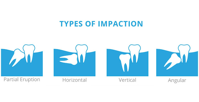 Tooth Impaction image.