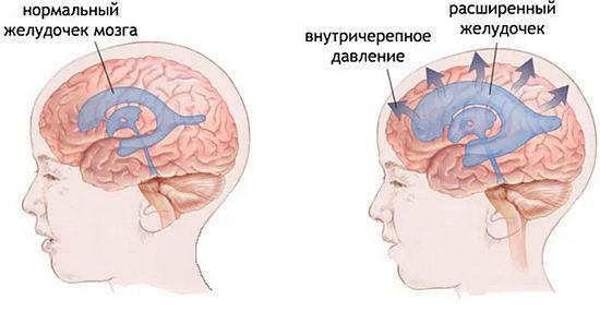 Невралгия и повышение давления