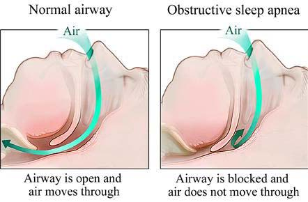 Obstructive sleep apnea (OSA) is a condition in which people who are affected stop breathing throughout the course of a night's sleep due to an obstruction. With no or little air freely flowing to the lungs, there is a decrease in oxygen levels in the blood.  An individual with sleep apnea can have any or all of the following symptoms