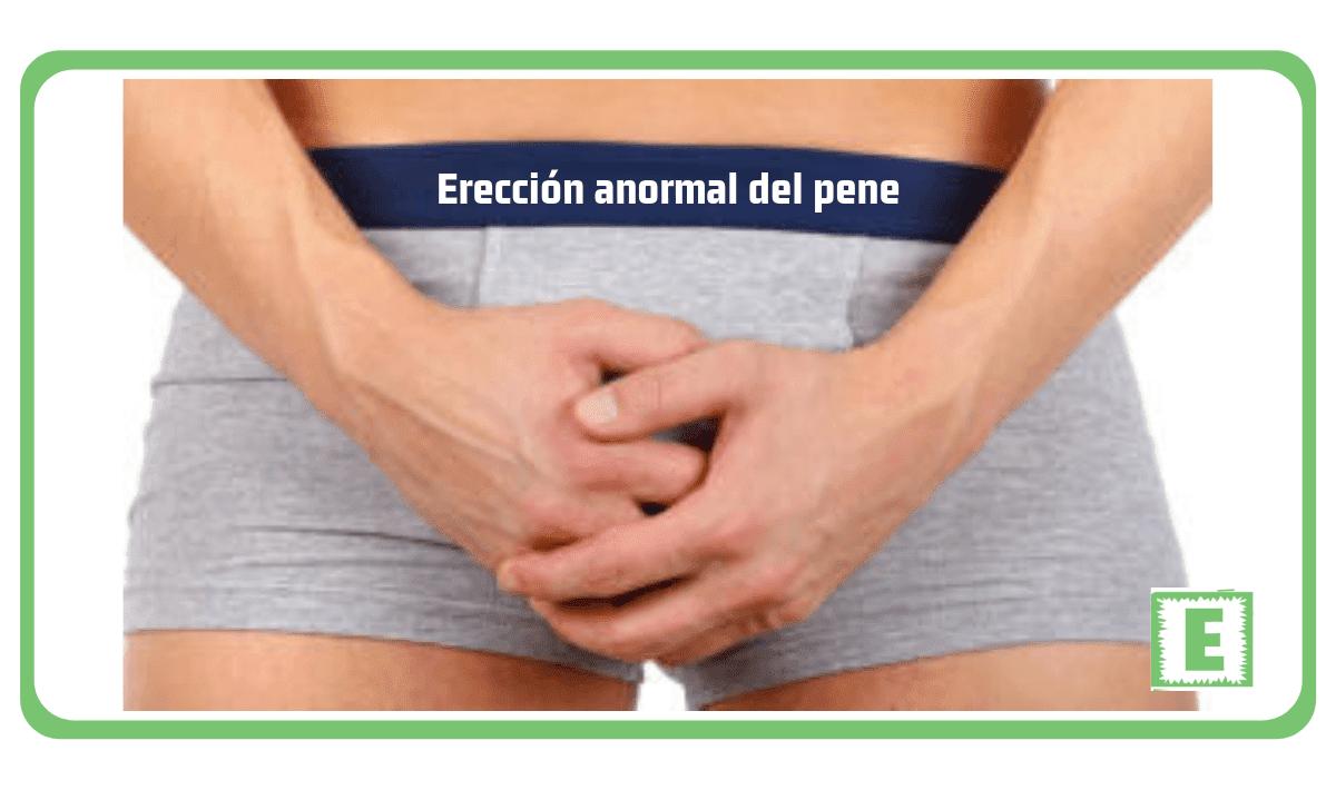 Erección anormal del pene