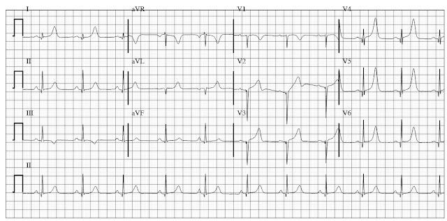 ECG of hypertrophic cardiomyopathy HCM