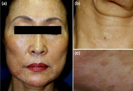 Độ pH thấp khiến hàng rào bảo vệ da bị phá hỏng, da khô và để lại đốm nâu ở khắp nơi