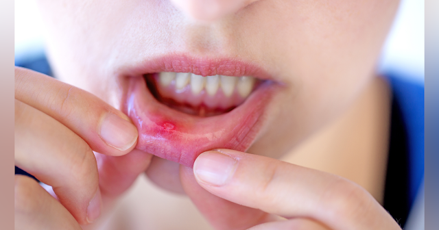 6 Ways How to get Rid of Mouth Ulcers Quickly
