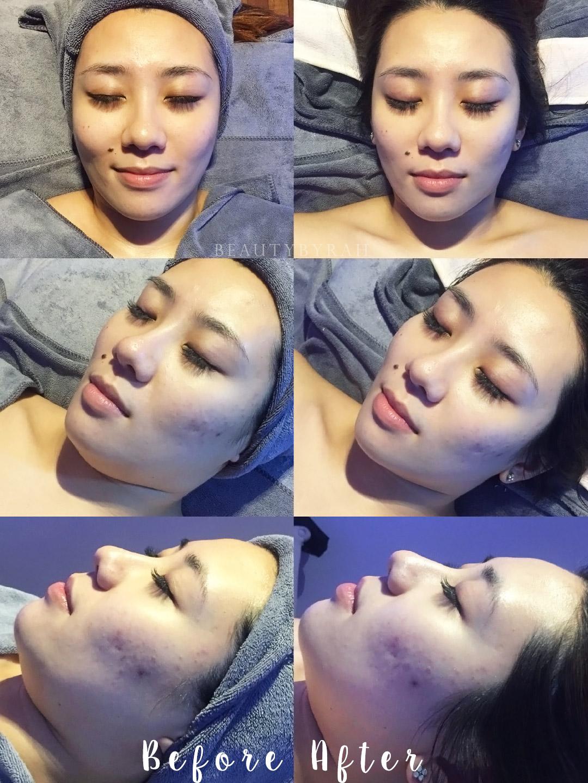 J Studios Signature Oxygen Deep Cleansing Facial Review