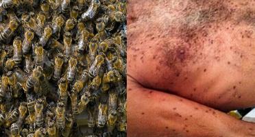 Resultado de imagem para ataque de abelhas