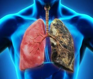 Makanan Untuk Membersihkan Paru-paru Kotor Dampak Rokok