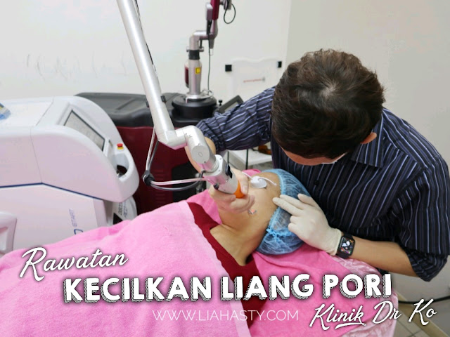 Rawatan Kecilkan Liang Pori di Klinik Pakar Kulit Dr. Ko Juru