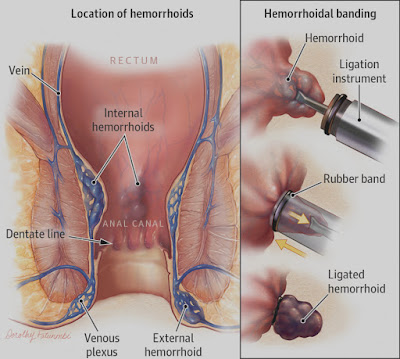Although they tin dismiss last extremely unpleasant too painful Hemorrhoids: Facts, Causes, too Treatments