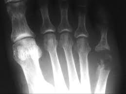 It is an inflammation of the bone and marrow (osteo- means bone and myelo – marrow)