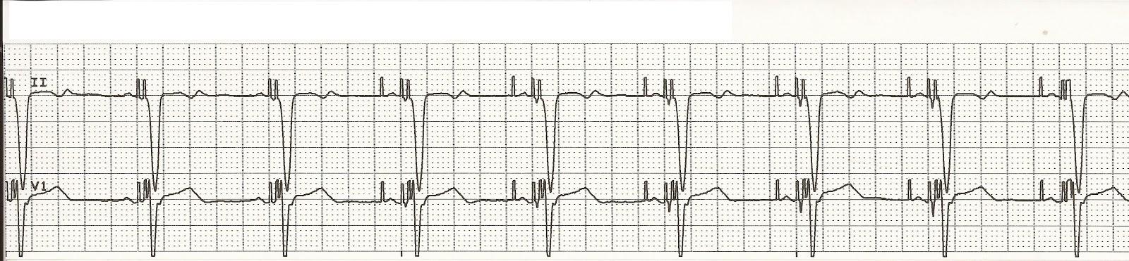 Float Nurse: EKG Rhythm Strips 70