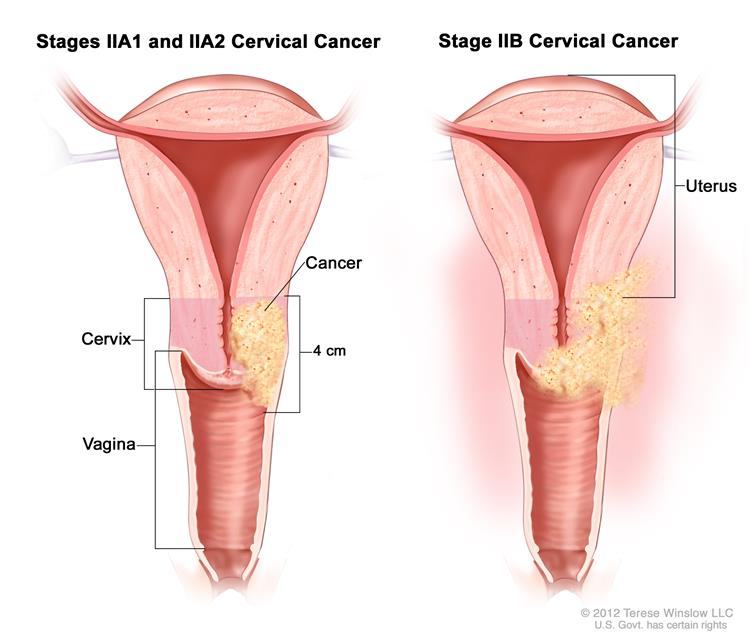 Cervical cancer caused by multiple sex partners