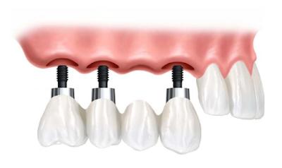 Proses dalam Pemasangan Gigi Palsu