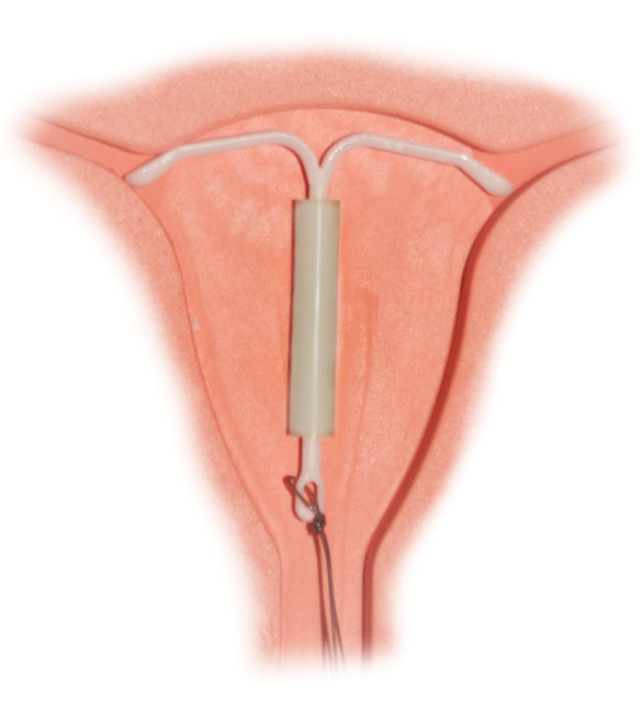 My IUD Experience - 1.5 Months Post-Insertion