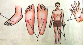 Gambar Titik-titik Refleksi untuk Mengatasi Kurang Darah