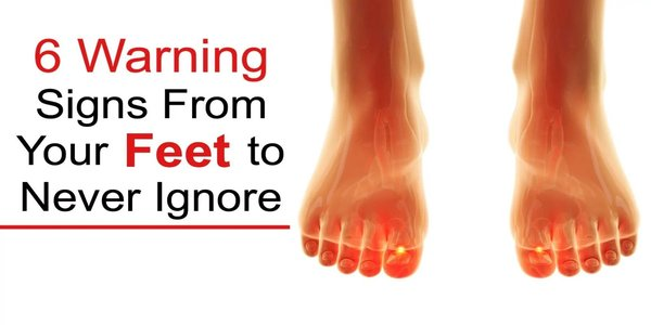 6 Health Warning Signs From Your Feet to Never Ignore