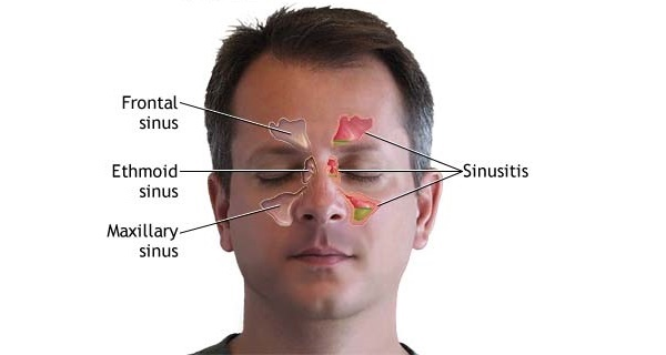 An Overview of Sinus Headache Treatment
