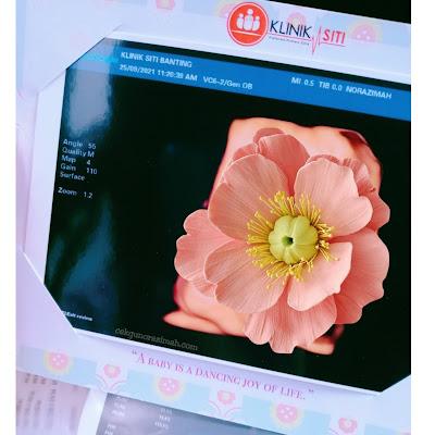 scan baby 3d banting, scan 3d murah banting, scan 4d murah di lembah klang, scan 4d terbaik, servis scan 4d terbaik, scan baby di klinik siti