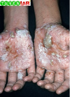 Fig. 5.30 Hand dermatitis with secondary infection