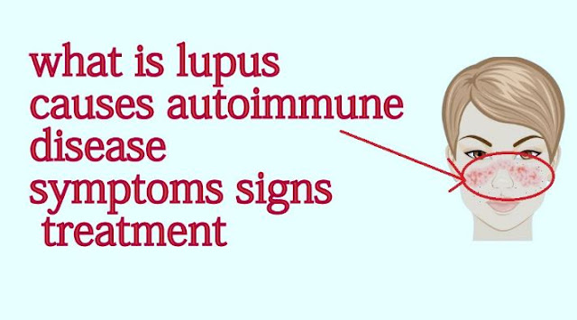 Lupus SLE Treatment, Causes and Symptoms