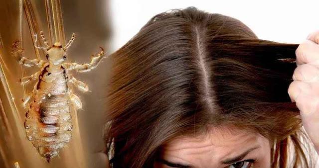 cara membasmi kutu rambut dengan peditox
