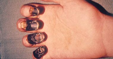مرض الطاعون ...أسبابه وطرق الوقايه منه