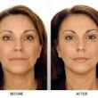 Looking Into Getting Cosmetic Surgery? Check This Out First!