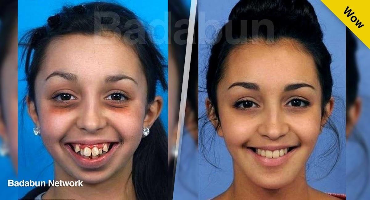 mujeres hombres cirugia operación mandibula rostro belleza salud