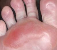 8 Macam Penyakit Kulit Karena Jamur, Gejala & Cara Mengatasinya
