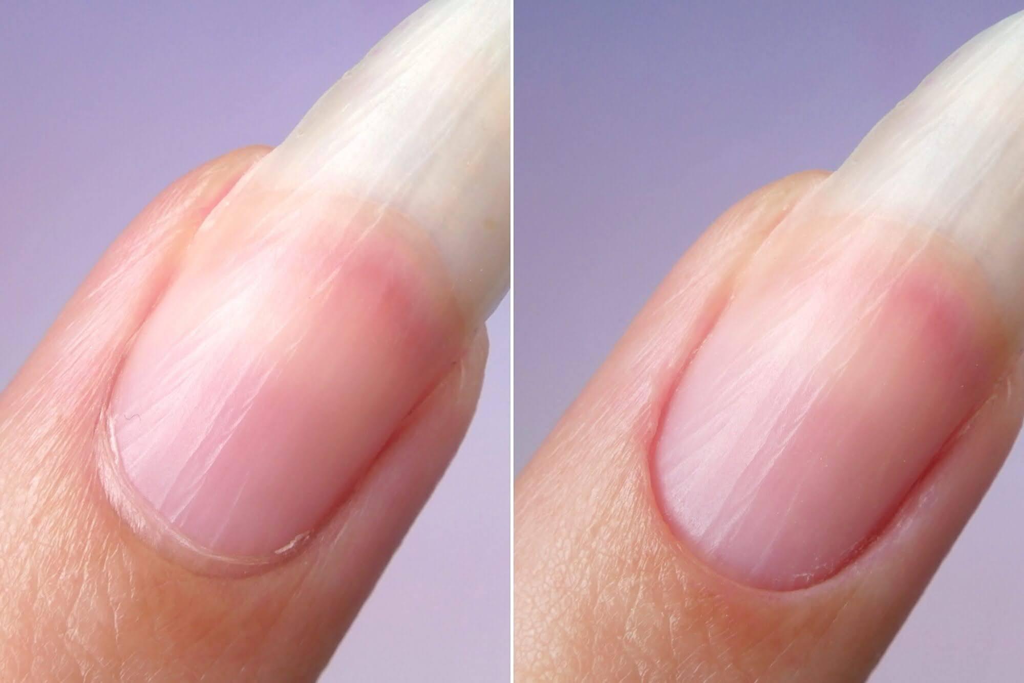 paznokieć przed i po