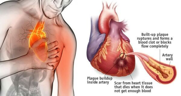 Stop A Heart Attack In 60 Seconds With This Very Popular Ingredient In Your Kitchen