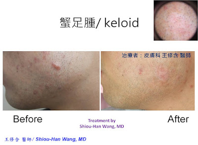 皮膚科王修含醫師: 蟹足腫:三合一除疤治療法