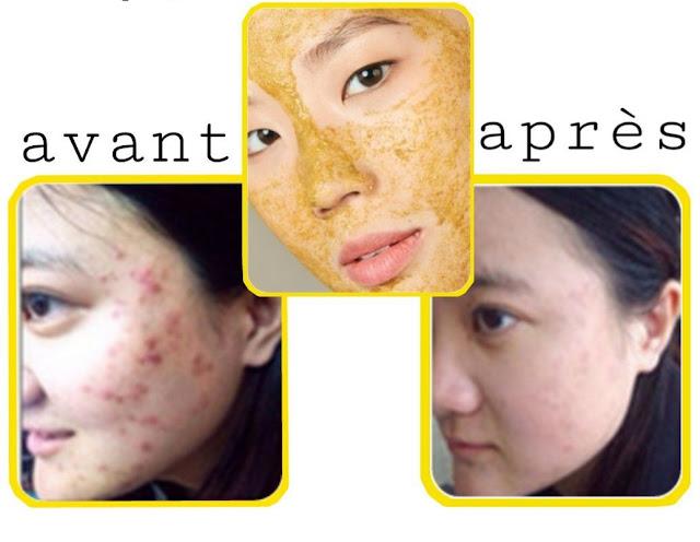 Supprimer les cicatrices d'acné en appliquant ce masque au curcuma