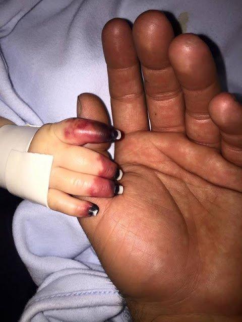 Belum Genap 6 Bulan Bayi ini Infeksi Meningokokus yang Fatal, Penyebabnya Sepele