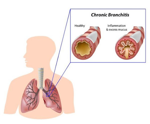 Bronchitis is swelling of the lining of the large airways called bronchi in the lungs.