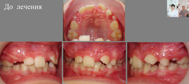 сверхкомплектные зубы, до лечения