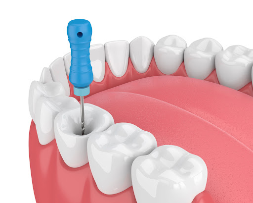 Root Canal Treatment RCT In Jamnagar