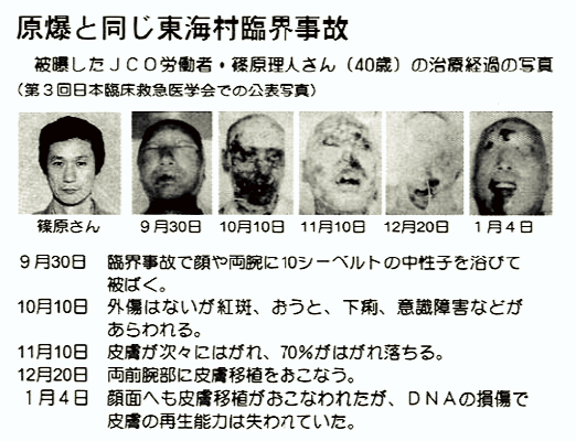 tokaimura-accident-nucléaire-radiotion-victimes