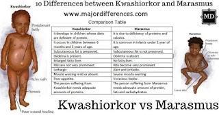 Kwashiorkar and marasmus  ScientificXplosion 