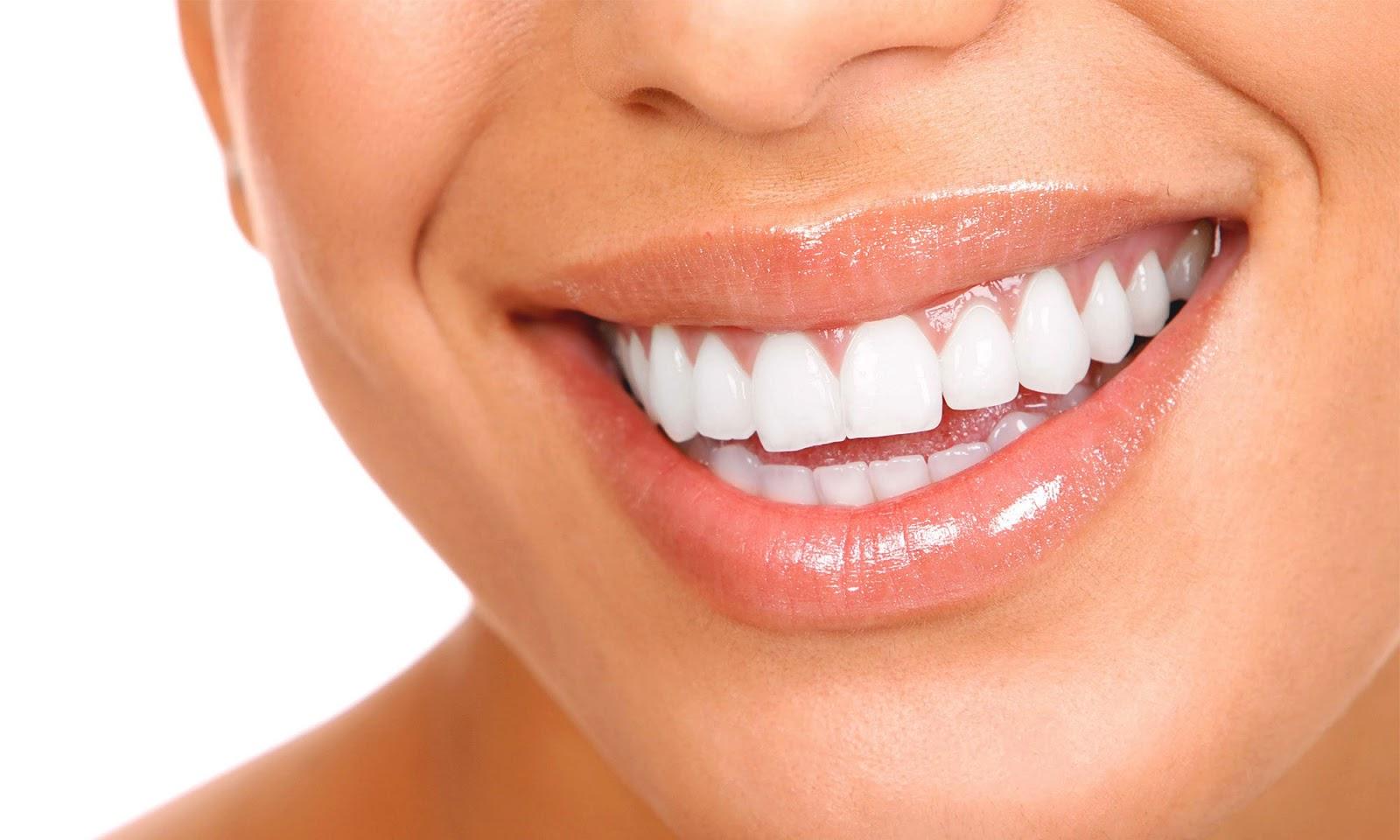 Cara Membesihkan Karang Gigi Secara Alami Dan Mudah