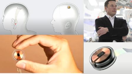 Neuralink nedir? Ne işe yarar? (Neuralink çipi)