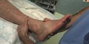 Foulure bénigne ou entorse grave : cheville, pied, genou...