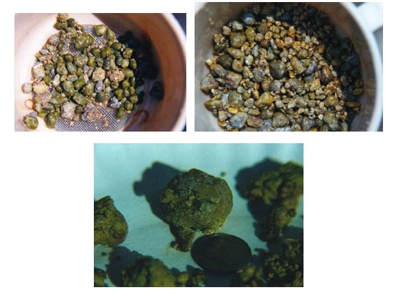 gallbladder-stones