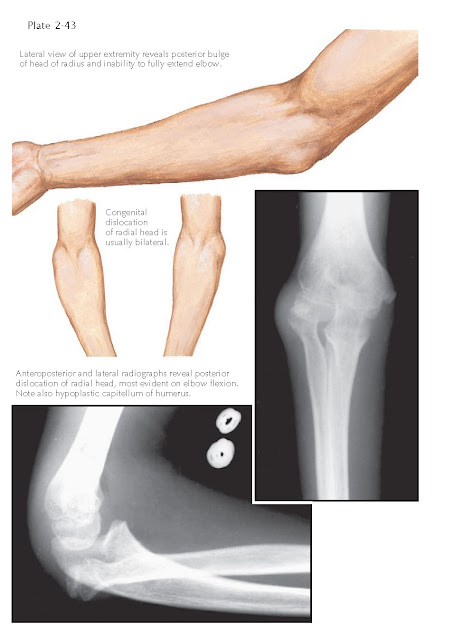 CONGENITAL DISLOCATION OF RADIAL HEAD