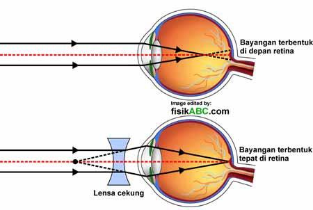 pembentukan bayangan pada cacat mata rabun jauh (miopi)
