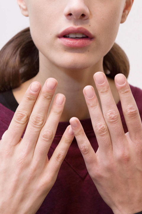 What Causes Weak Brittle Nails