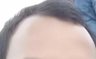 Hair loss growth   hair loss kit