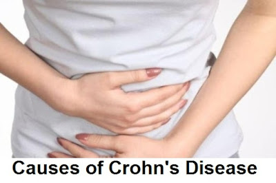 crohn's disease information: systems of crohn's disease