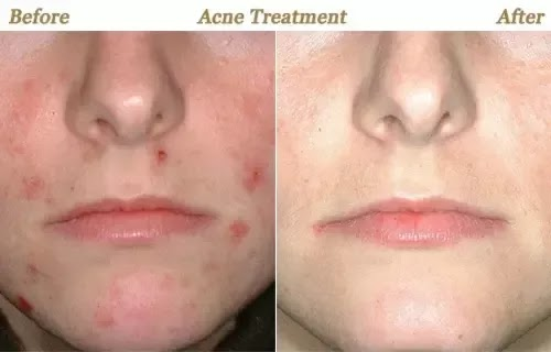 Nose Scar Healing Time For Cuts And Scars Acne Scar Solution