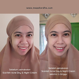 before after scarlett acne cream